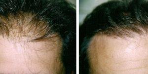 θεραπεία τριχόπτωσης απο τη bioanaplasis