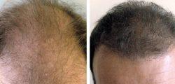 μεταμοσχευση μαλλιων bioanaplasis 2