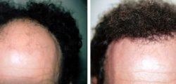μεταμοσχευση μαλλιων bioanaplasis 3