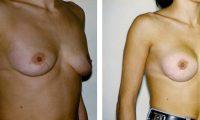 πλαστικη στηθους bioanaplasis 3