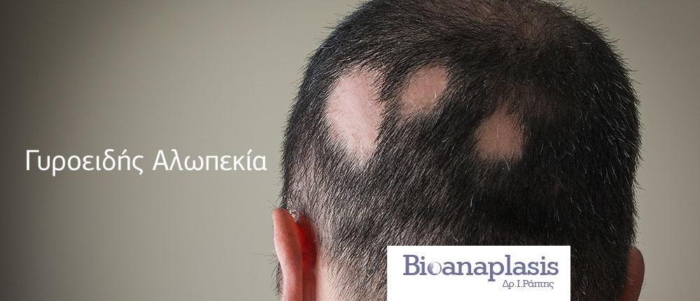 Γυροειδής Αλωπεκία, Bioanaplasis Δρ Ι Ράπτης, Αγία Παρασκευή Αθήνα